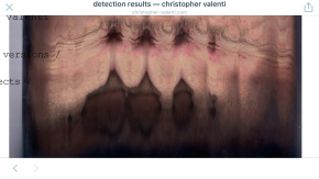 detection results — christopher valenti