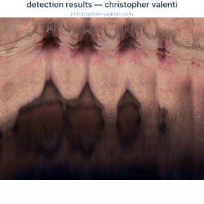 detection results — christophervalenti